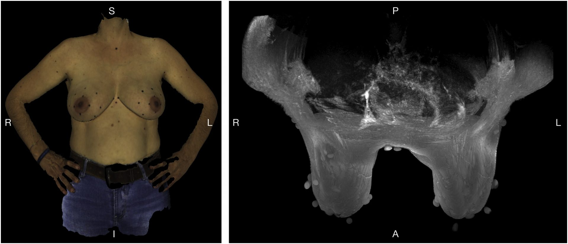 goscan - cancro mama - fundação champallimaud - scanner 3D - scanning 3D - digitalização 3D - metrologia industrial - controlo e inspecção dimensional - s4metro